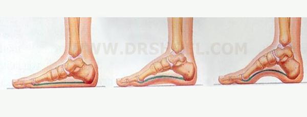 قوس کف پا و لزوم استفاده از کفش طبی