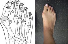 بونیون به معنی  افزایش حجم استخوان یا بافت های اطراف مفصل در قاعده انگشت شست پاست. با بزرگتر شدن بونیون، انگشت بزرگ به سمت انگشت دوم متمایل شده و با پوشیدن کفش فرد احساس تورم و درد می کند