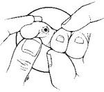 میخچه به عنوان نوعی پینه زمانی تشکیل می شود که کفش تنگ به طور مداوم بر پوست پا فشار وارد می کند. ساده ترین روش درمانی استفاده از پد هایی از جنس فوم بر روی میخچه است تا میزان فشار وارده بر آن کاهش یابد. افزون بر این، استفاده از کفش های راحت و مناسب که فضای کافی برای انگشتان فراهم شود می تواند موثر باشد.