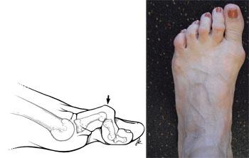 انگشت چکشی باعث می شود در بالاترین نقطه خمیدگی میخچه ایجاد شود که همین مسئله باعث تشدید احساس ناراحتی می شود.