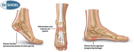 فاشیای کف پا زمانی رخ می دهد که نوار کلفتی از بافت در کف پا بیش از حد کشیده شده یا مورد استفاده قرار گیرد . این امر می تواند دردناک بوده و راه رفتن را بسیار مشکل سازد